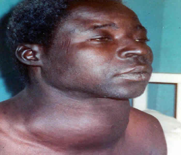 Thyroid Goiter Causes Symptoms Treatment Diagnosis And
