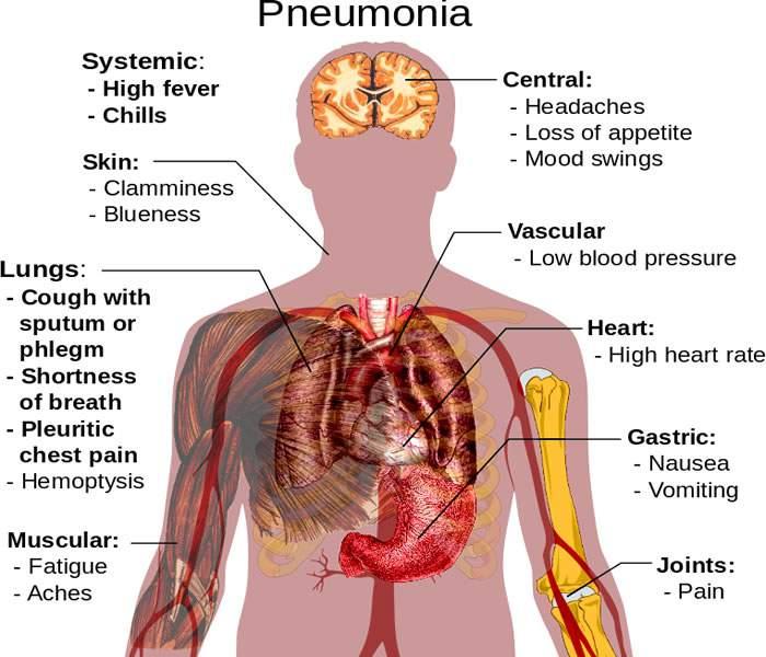 pneumonia - causes, symptoms, treatment, diagnosis and prevention, Human Body