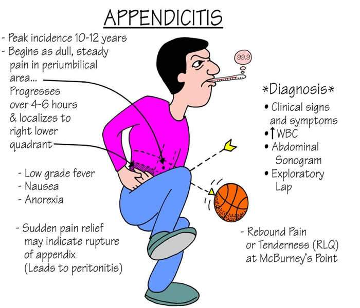 appendicitis - causes, symptoms, treatment, diagnosis and, Human Body