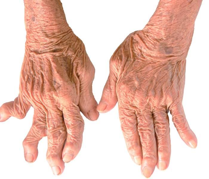 Image result for गठिया की बीमारी