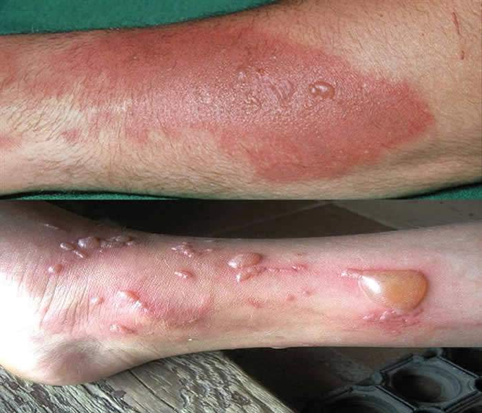 Burns Causes Symptoms Treatment Diagnosis And