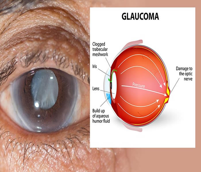 glaucoma - causes, symptoms, treatment, diagnosis and prevention, Skeleton