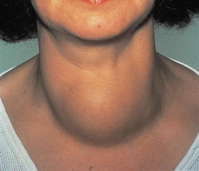 thyroid goiter - causes, symptoms, treatment, diagnosis and, Skeleton