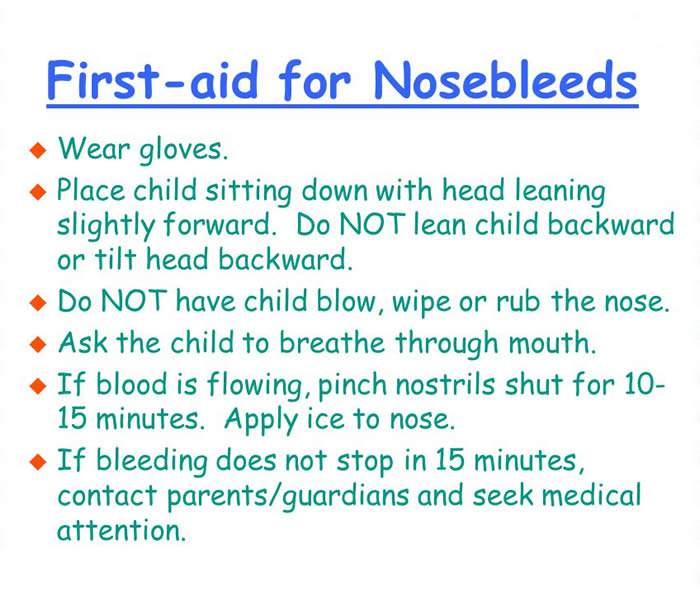 Epistaxis Nosebleed - Causes, Symptoms, Treatment, Diagnosis and ...
