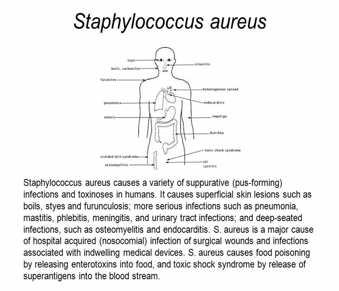Staphylococcuss - Causes, Symptoms, Treatment, Diagnosis and