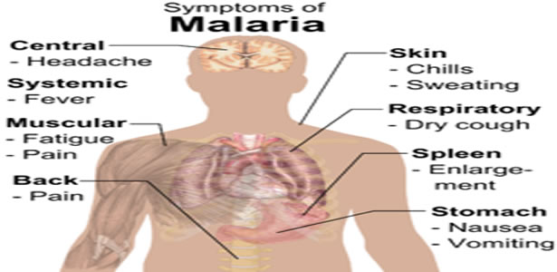 symptoms and treatment of parasitic disease malaria Table of contents what is malaria symptoms causes diagnosis treatment prevention malaria is a life-threatening mosquito-borne blood disease caused by a plasmodium parasite it is transmitted to humans through the bite of the anopheles mosquito.