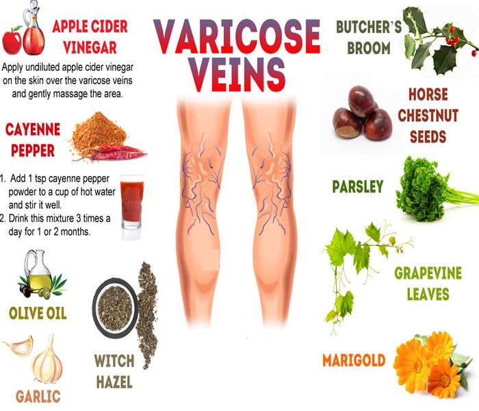 Home treatment for varicose and spider veins