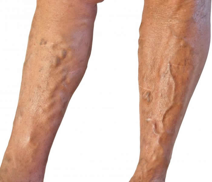 Varicose Veins - Causes, Symptoms, Treatment, Diagnosis ...