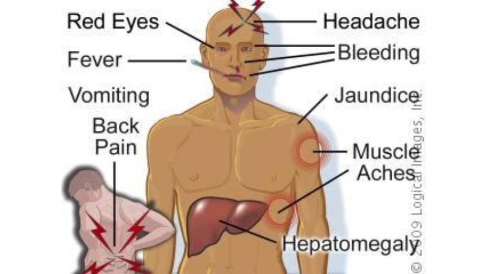 typhoid symptoms and treatment pdf