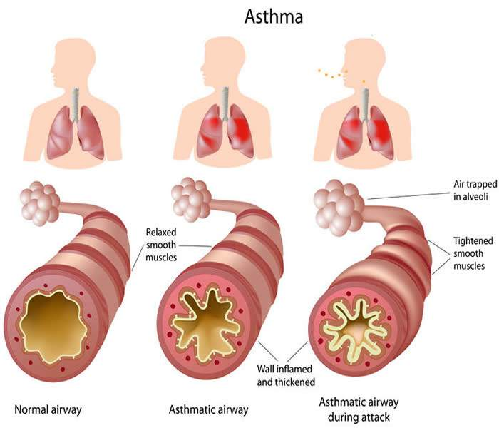 Natural Therapy for Asthma Cough :: Galleria Health and Lifestyle
