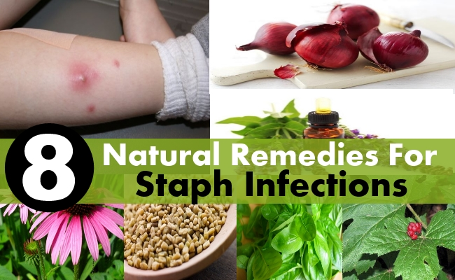 Natural Therapy for Staphylococcus aureus :: Galleria Health